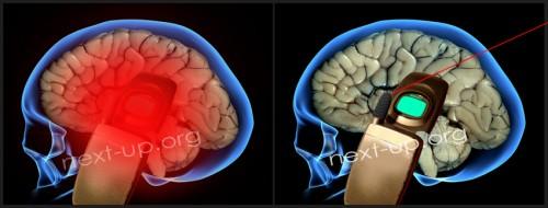 1 pav. Taip EMS veikia smegenis